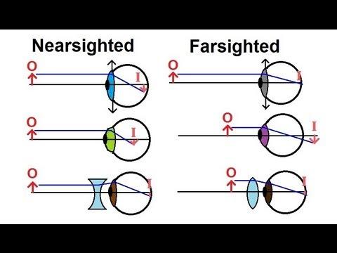 Physics – Optics: Vision Correction (1 of 5) Introduction