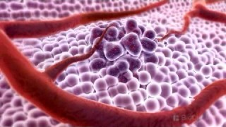 3D Medical Animation – What is Cancer?