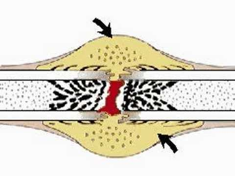 How the Body Works : Repair of Bone