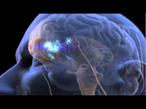 Pain Perception and the Human Brain