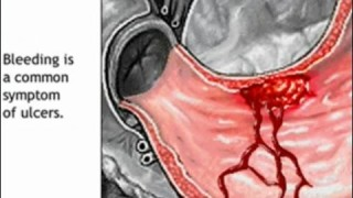 Stomach Ulcer Animation – Peptic Ulcer Disease Causes, Symptoms, Treatment – Gastric Anatomy