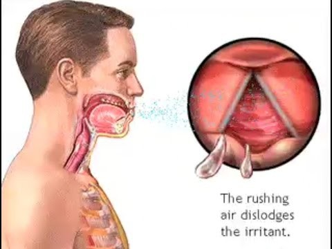 How Do We Cough? – The Mechanism of Coughing – Cough Reflex Animation – Learn Human Body