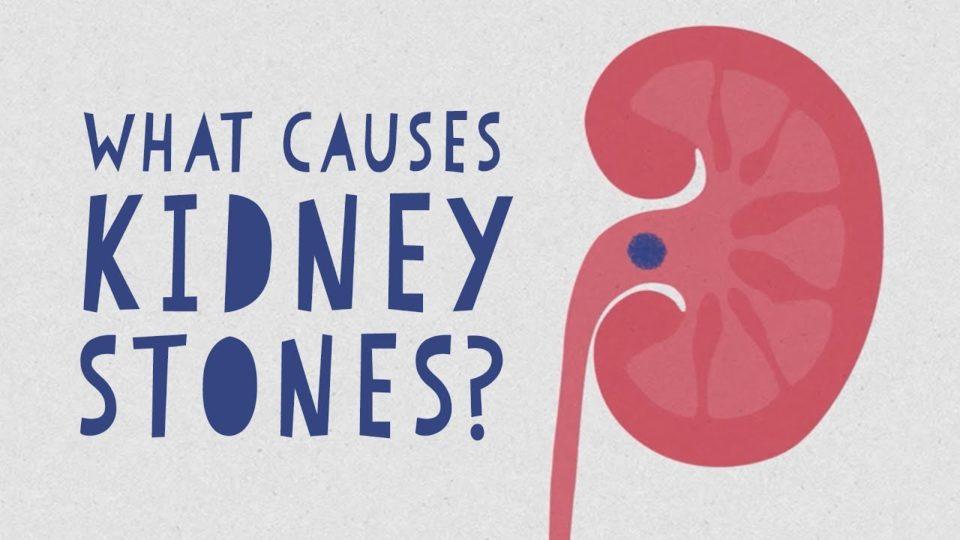 What causes kidney stones? – Arash Shadman